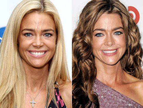 denise richards face